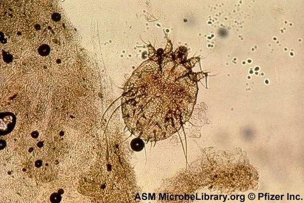 Чесоточный клещ Acarus siro var. vulpes (Sarcoptes scabiei), фото болезни диких и домашних животных фотография картинка