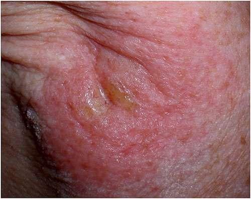 Morgellons disease photo