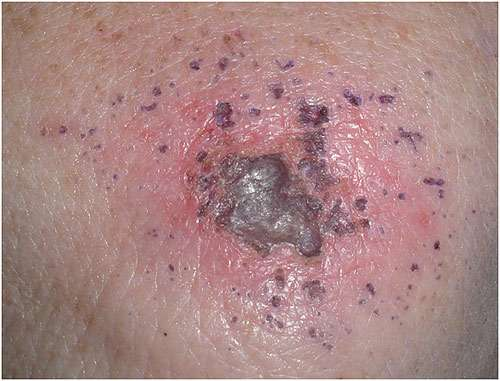 Morgellons disease photo