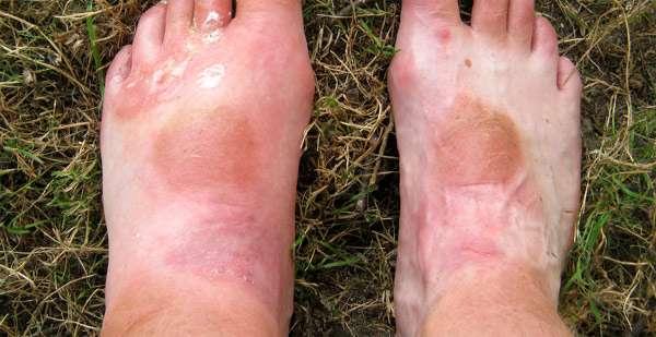 Покусаные пчелами ноги, укусы ос, фото фотография картинка
