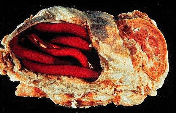 Гигантский свайник (Dioctophyme renale) в почке, фото паразиты кошек, фотография болезни кошек