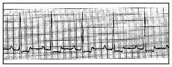 Рис.1 ЭКГ собаки с выраженной ИБС. Депрессия сегмента S-T (II отведение, 1 мВ, 50 мм/с)